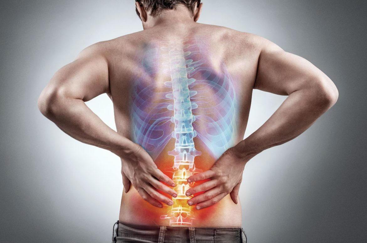 Sciatica and Lower Back Pain Information
